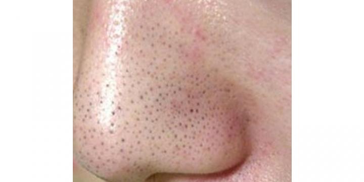 鼻 黒ずみ 毛穴